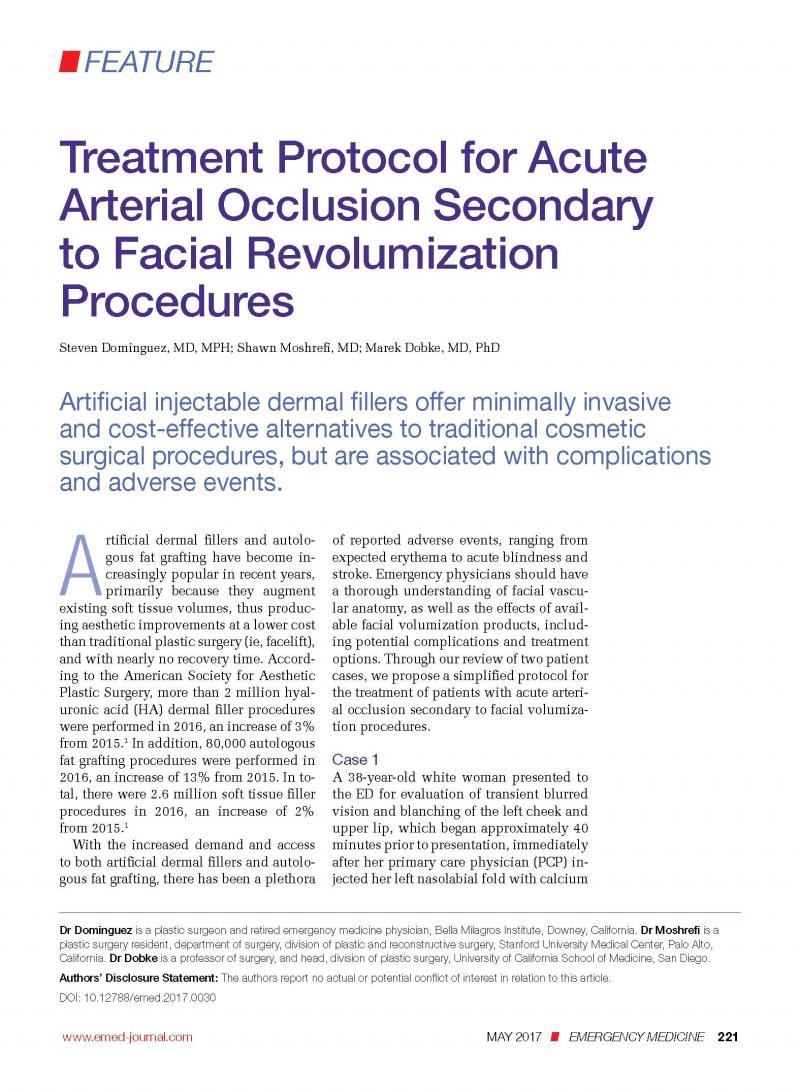Facial Artery Occlusion from fillers