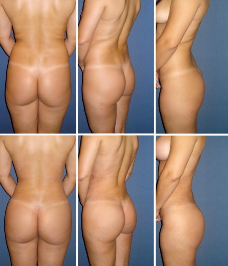 LipoSculpture with Fat Grafting to Buttock